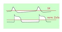 Schrittmacherzellen