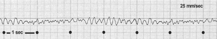 EKG: Das zeigt die Elektrokardiografie an Apotheken