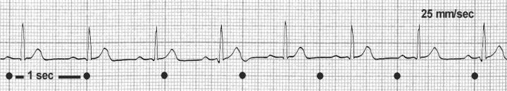 Wie man ein EKG-Streifen lesen Medizin Deutschland